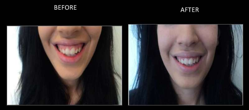 gummy smile 1