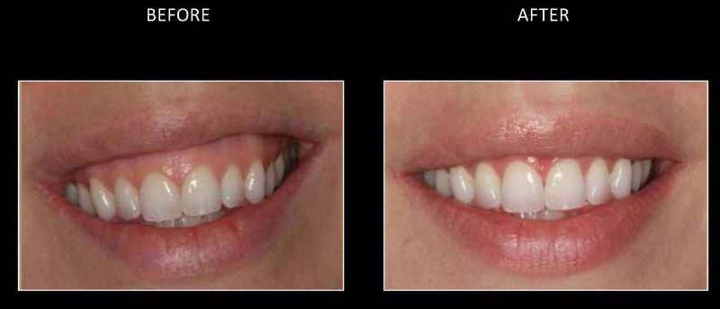 gummy smile 2