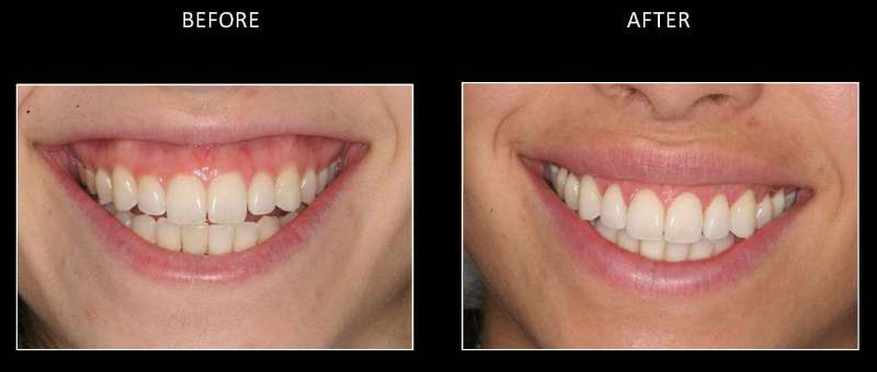 gummy smile 3